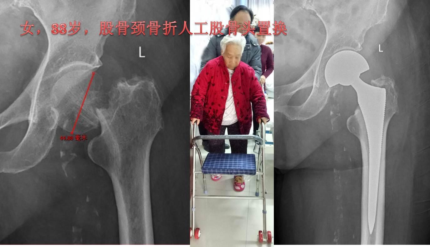 图6 女,88岁,股骨颈<!--HAODF:8:guzhe--><!--HAODF:8:guzhe--><!--HAODF:8:guzhe--><!--HAODF:8:guzhe--><!--HAODF:8:guzhe--><!--HAODF:8:guzhe--><!--HAODF:8:guzhe-->骨折<!--HAODF:/8:guzhe--><!--HAODF:/8:guzhe--><!--HAODF:/8:guzhe--><!--HAODF:/8:guzhe--><!--HAODF:/8:guzhe--><!--HAODF:/8:guzhe--><!--HAODF:/8:guzhe-->人工股骨头置换.jpg