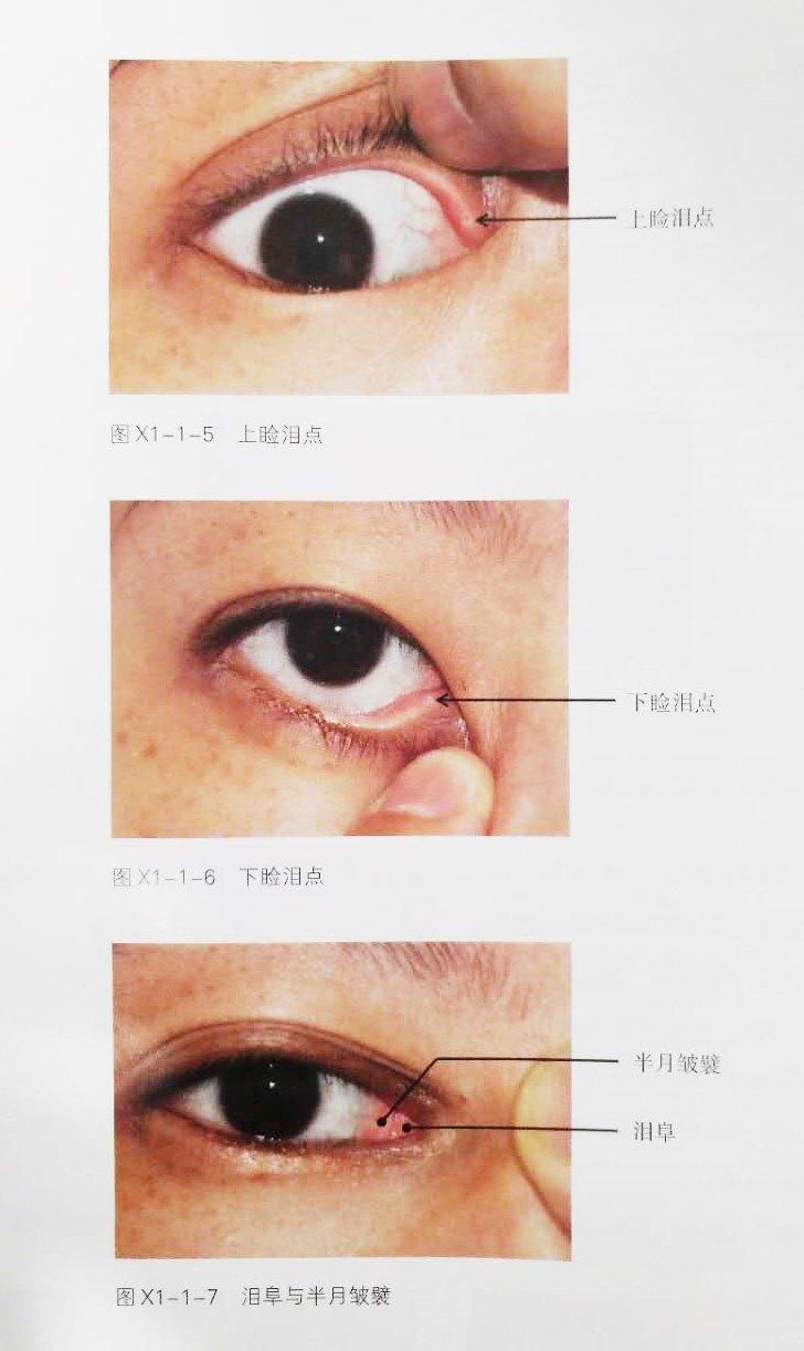 眼睑与眼周的解剖结构 睑裂篇