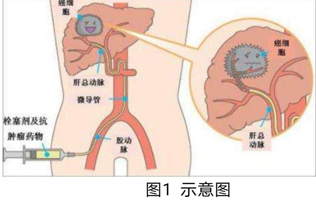 肝癌的介入治疗