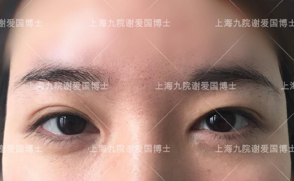 眼整形术式:什么是park法双眼皮?