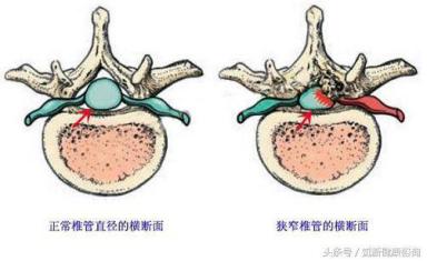 狭窄 症 管 脊椎