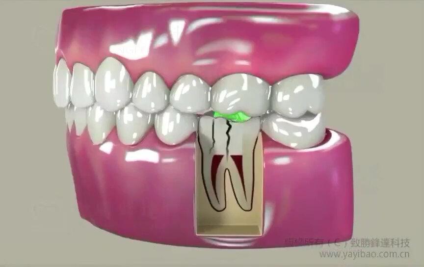 牙神经抽掉后(根管治疗)为什么一定要做烤瓷牙-杀掉牙神经和血管后牙齿质地脆弱容易折断,整体包冠保护它