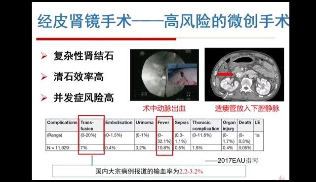 经皮肾镜碎石术:大体积肾结石治疗的首选方式
