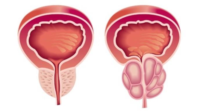 无菌性前列腺炎能自愈吗,应如何处理?