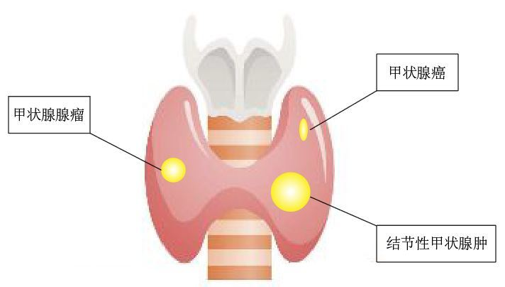 甲状腺结节2.JPG