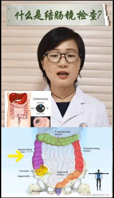 什么是结肠镜检查?结肠镜检查是怎么进行的?