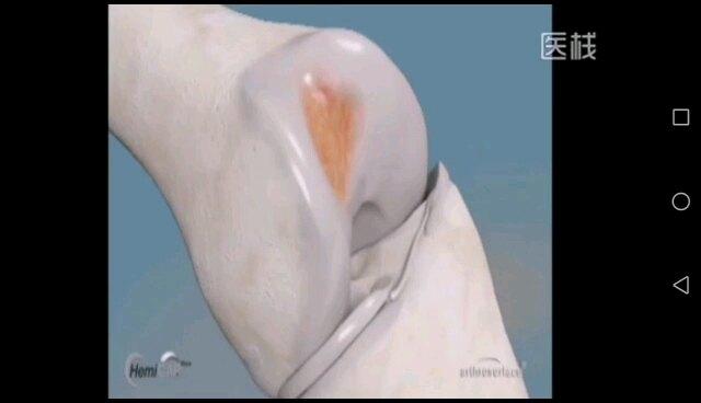 3D演示——髌股关节置换术