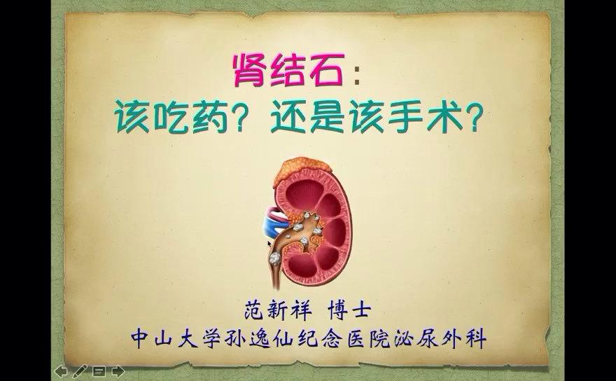 肾结石,如何选择合理的治疗方式?