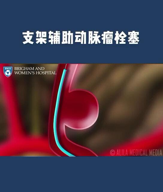 脑动脉瘤支架辅助下栓塞术