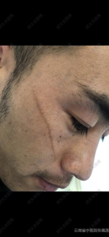 术后/治疗后第210天(约7月)
