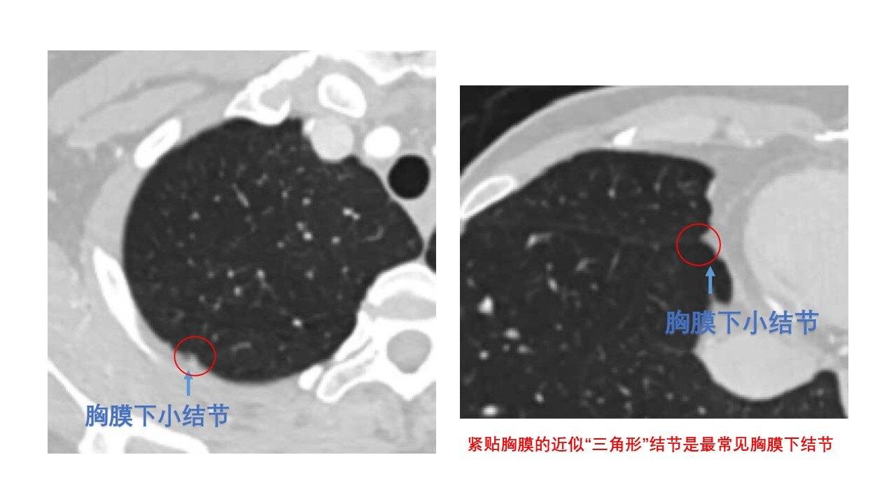 胸膜下結節解析.jpg