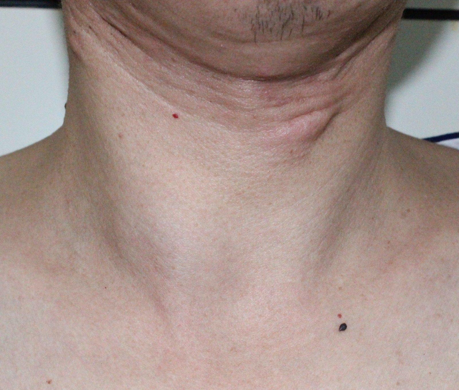 甲状腺双侧叶多发囊性结节是什么意思
