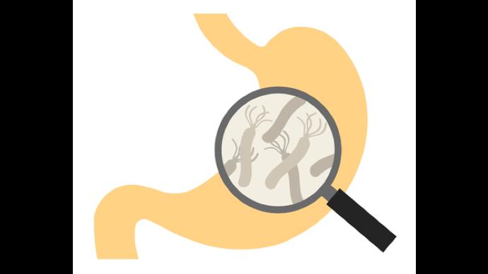 幽门螺旋杆菌检测的方法有哪些?
